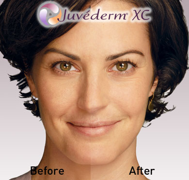 Juvederm Ultra Before and After Photo 2
