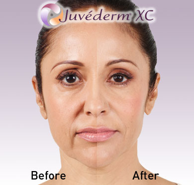 Juvederm Ultra Before and After Photo 1