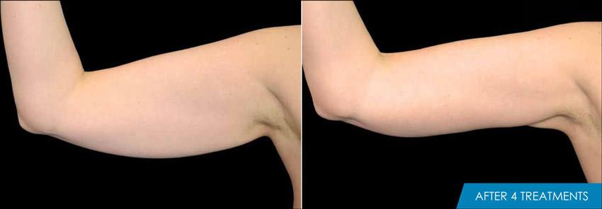 Exilis Arm before and after -4 treaments - New Radiance Cosmetic Center
