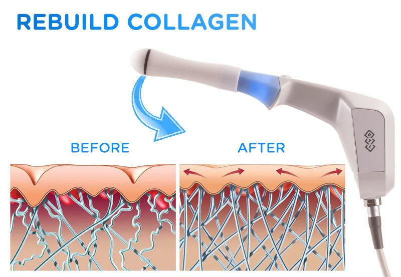 Rebuild Collagen