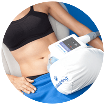 CoolSculpting What Does It Look Like