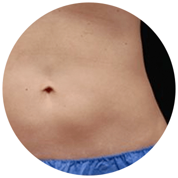 CoolSculpting - Fat Freezing Treatment Area