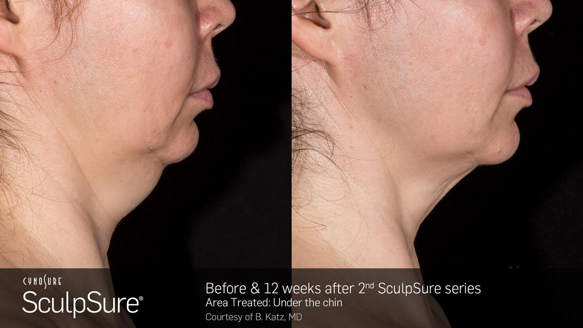SculpSure Double Chin Before and After Photo 1