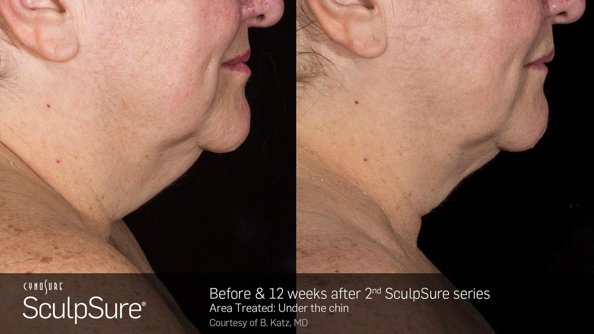 SculpSure Double Chin Before and After Photo 3