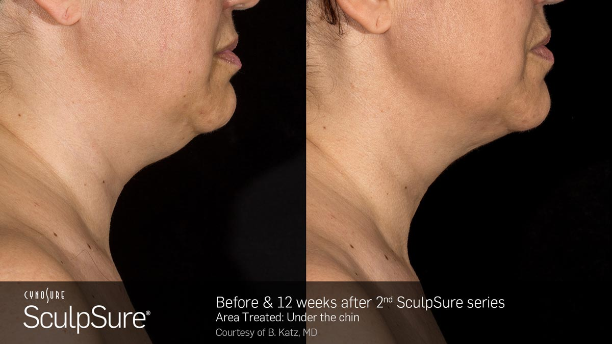 SculpSure Double Chin Before and After Photo 5