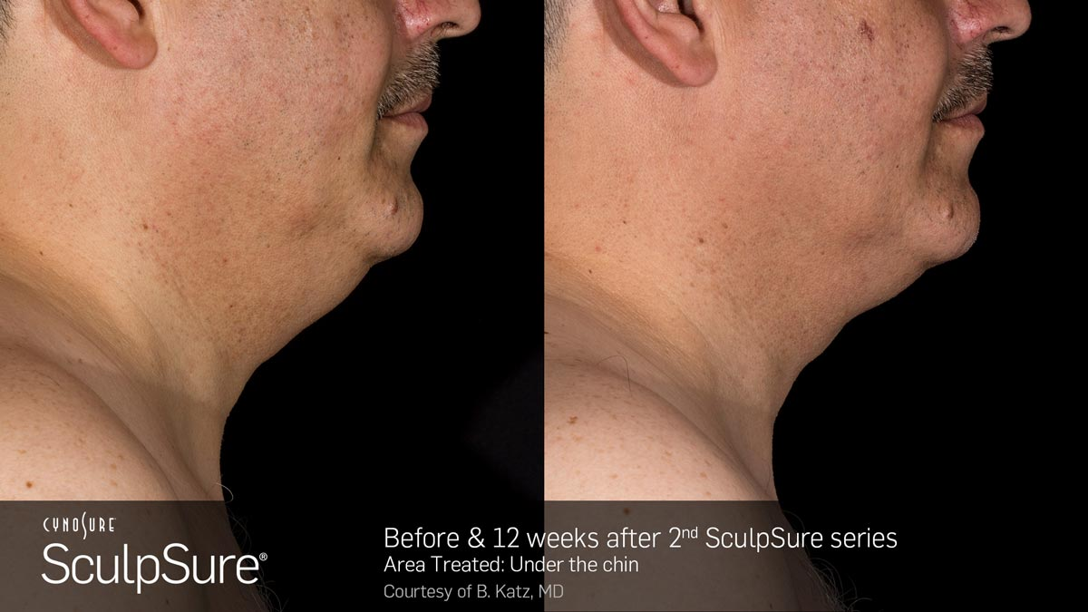SculpSure Double Chin Before and After Photo 4