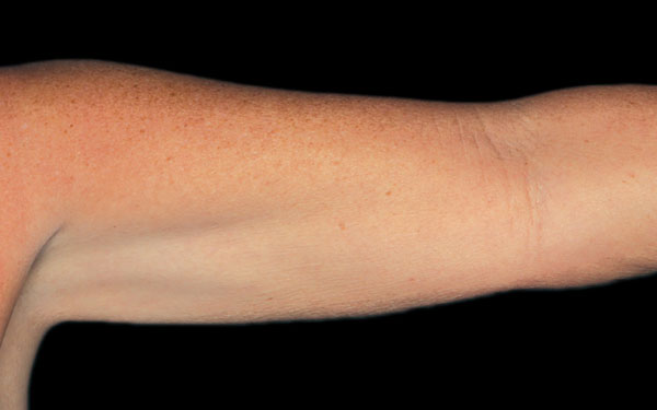 CoolSculpting Arms Treatment | After