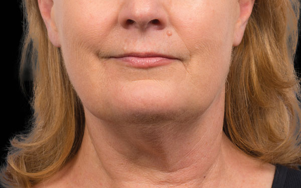 CoolSculpting Chin Treatment | After