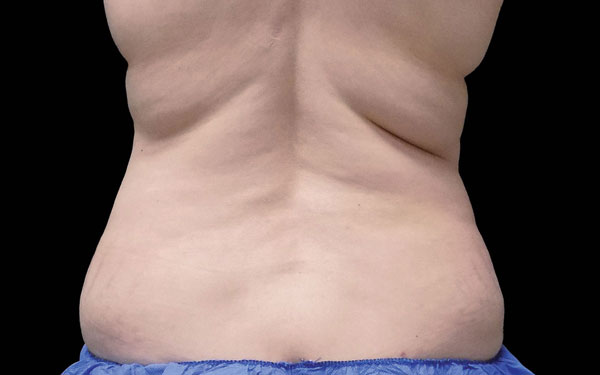 CoolSculpting Flanks Treatment and Love Handle Reduction | Before