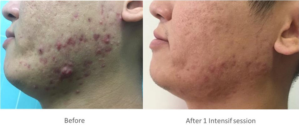 Intensif Microneedling for Acne Scars Before and After 1