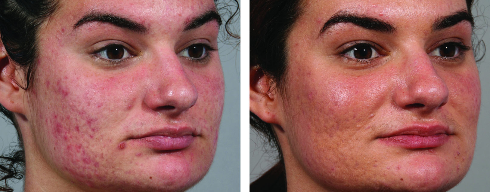 Intensif Microneedling for Acne Scars Before and After 2