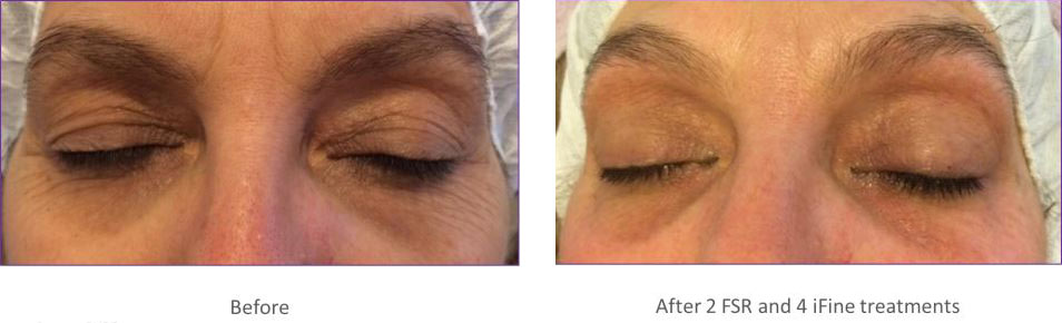 Intensif Microneedling with Radio Frequency Before and After 1