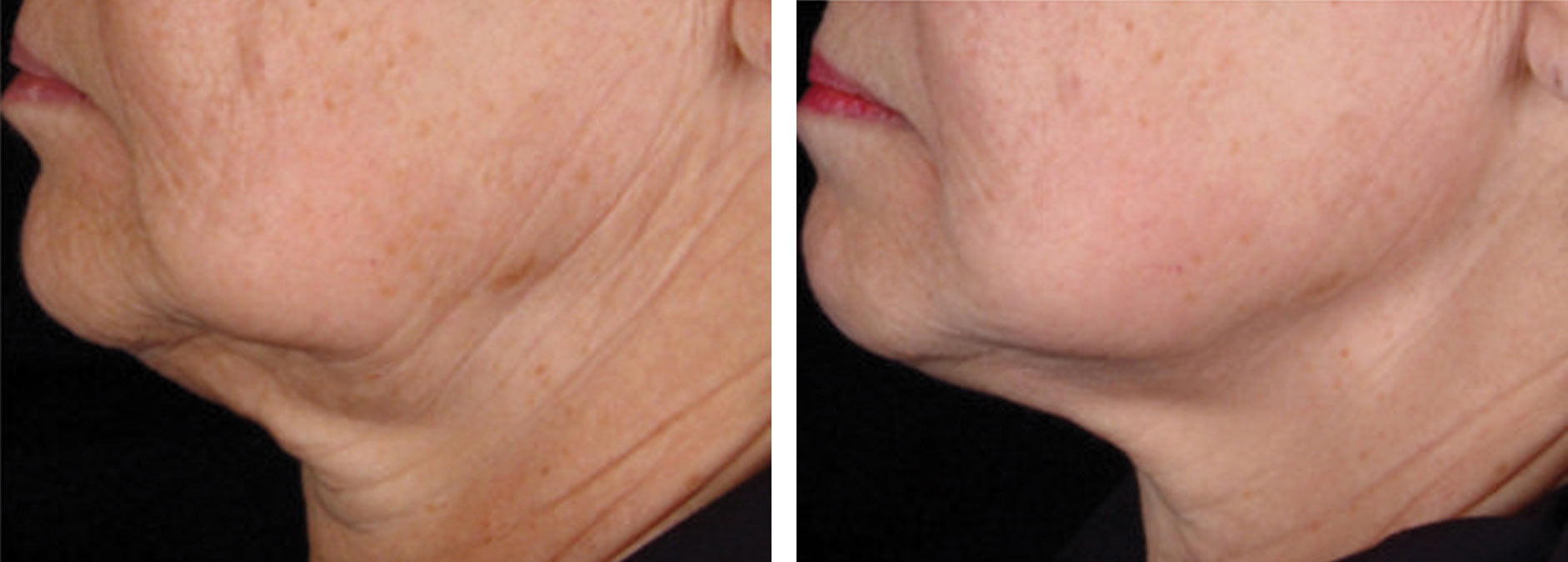 Intensif Microneedling with Radio Frequency Before and After 2