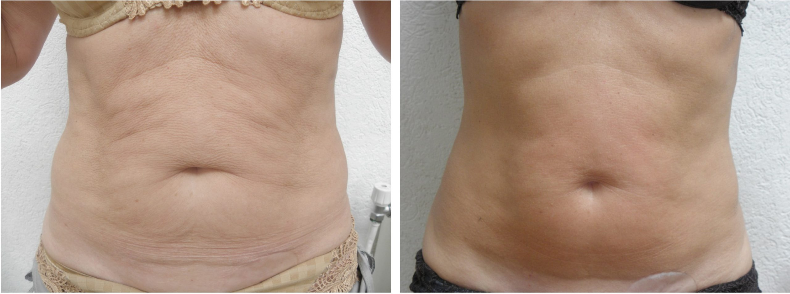 Intensif Microneedling with Radio Frequency Before and After 5