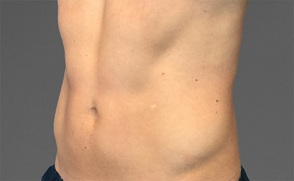 CoolTone Abdomen Male After
