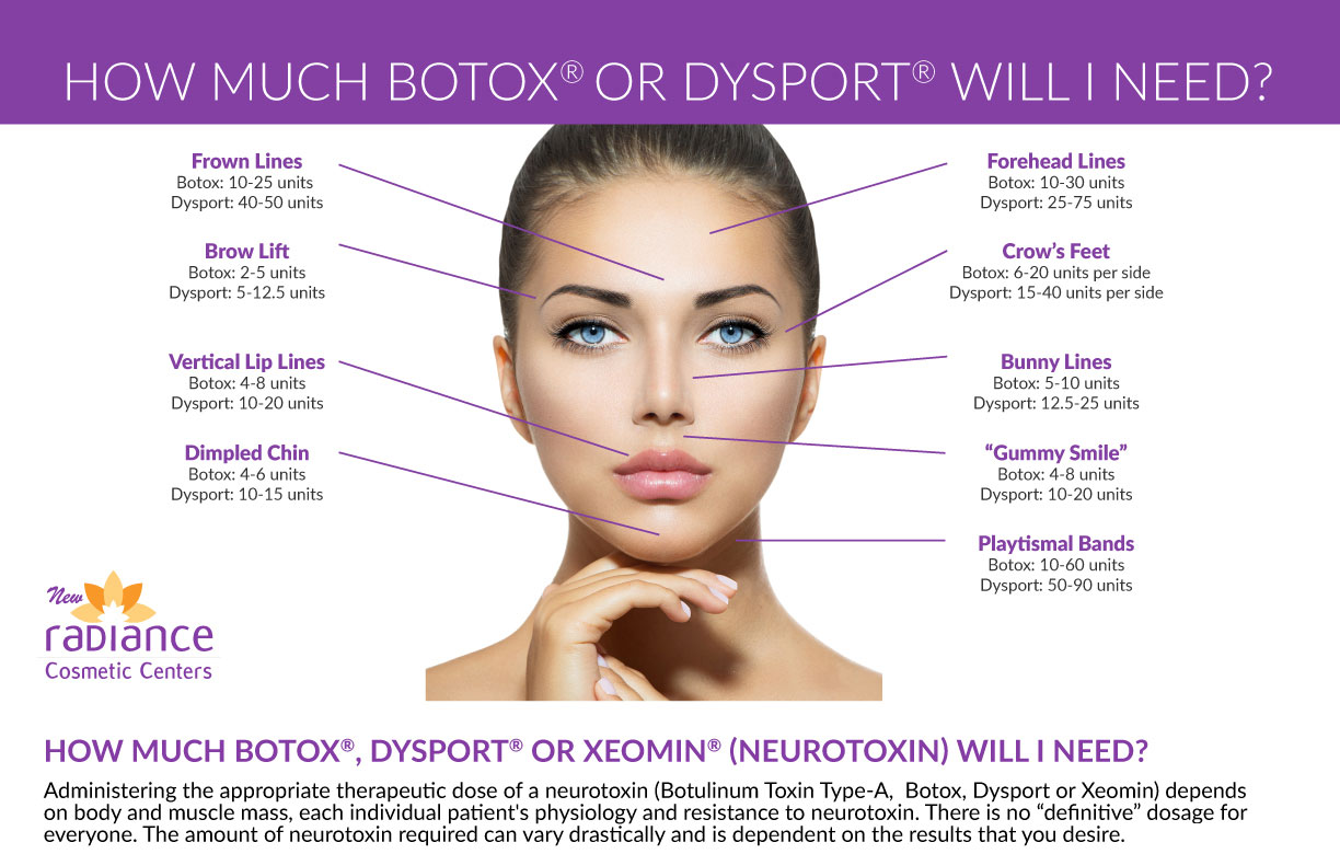 Neuromodulators - How much Botox or Dysport will I need?