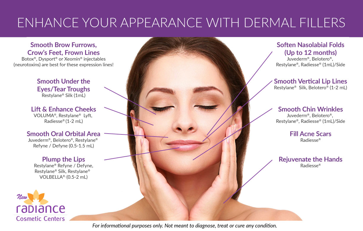 Dermal Fillers - Treatment Areas