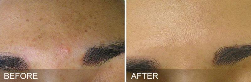 HydraFacial Before and After - Brown Spots