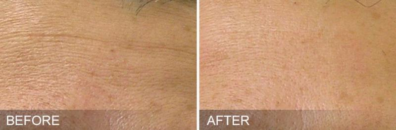 HydraFacial Before and After - Fine Lines