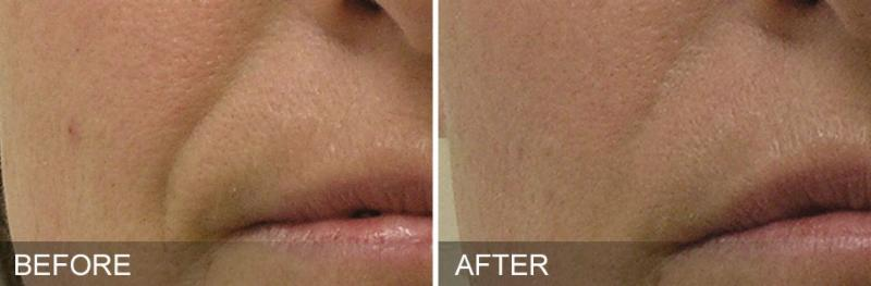 HydraFacial Before and After - Nasolabial Folds