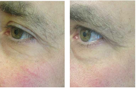 Microneedling Before and After - Fine Lines