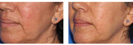 Microneedling Before and After - Skin Rejuvenation 2