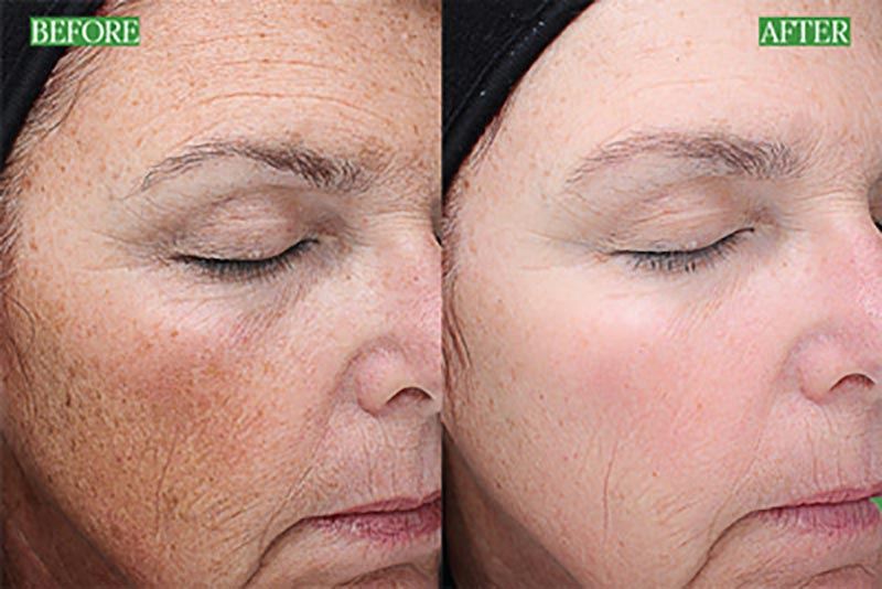 VI Peel Before & After