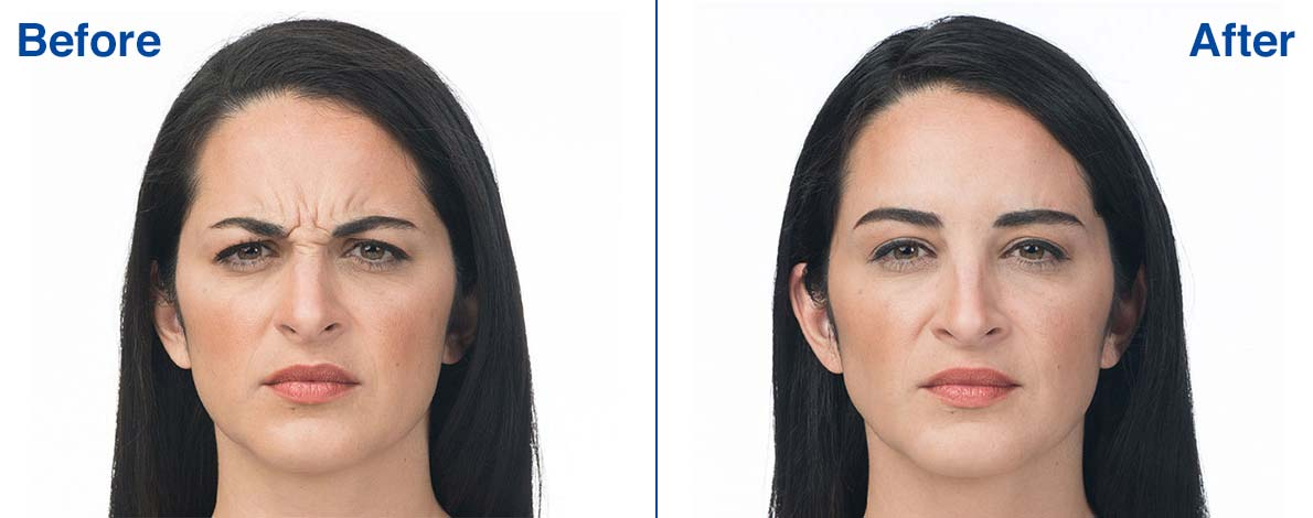 Botox Before and After Photo 3