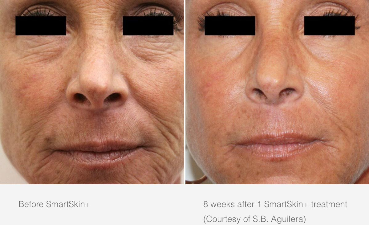 CynoSure Smartskin Before After 2