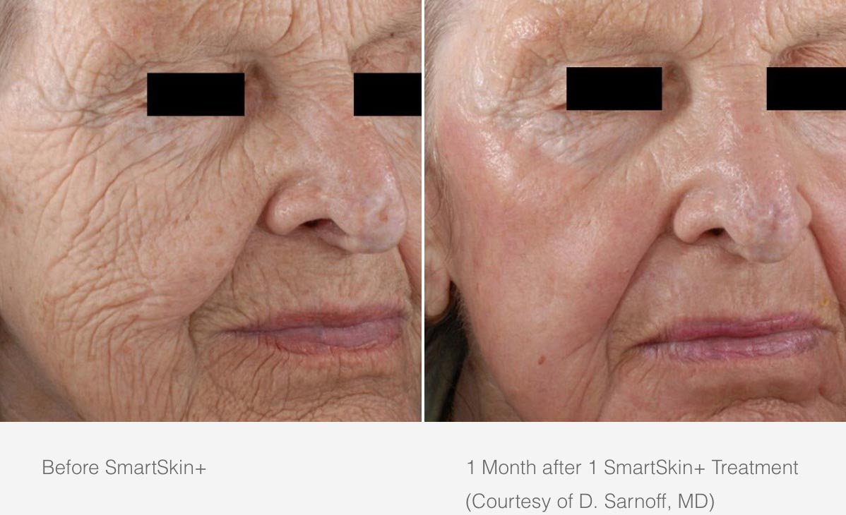 CynoSure Smartskin Before After 3