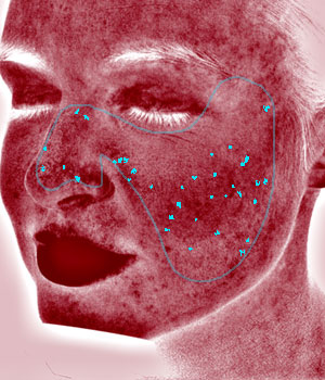 Digital Complexion Analysis Red Areas