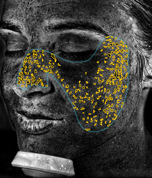 Digital Complexion Analysis UV Spots
