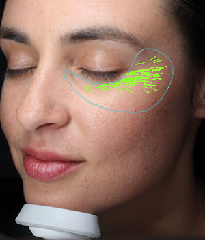 Digital Complexion Analysis Wrinkles