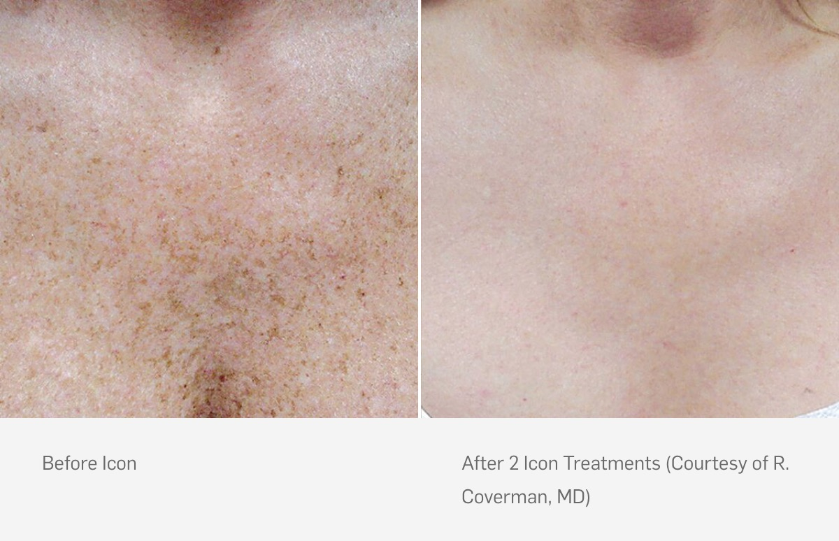Icon Laser Skin Resurfacing Before After Age Spots Treatment