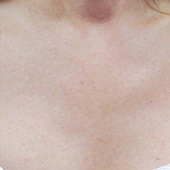 IPL Photo Facial Chest Decolletage After