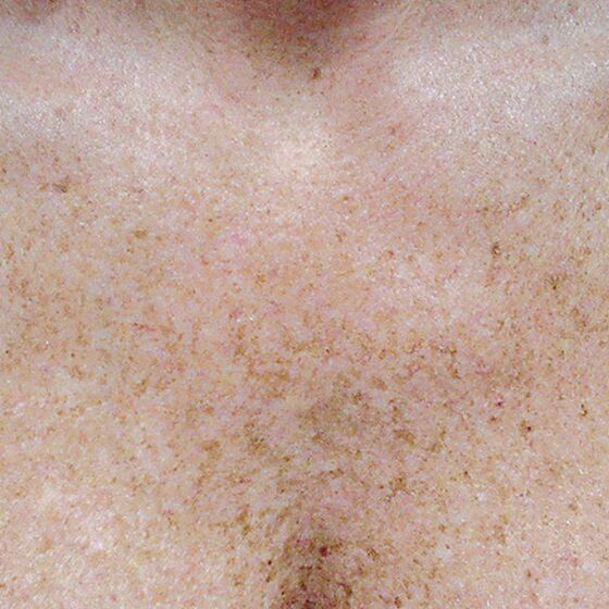 IPL Photo Facial Chest Decolletage Before