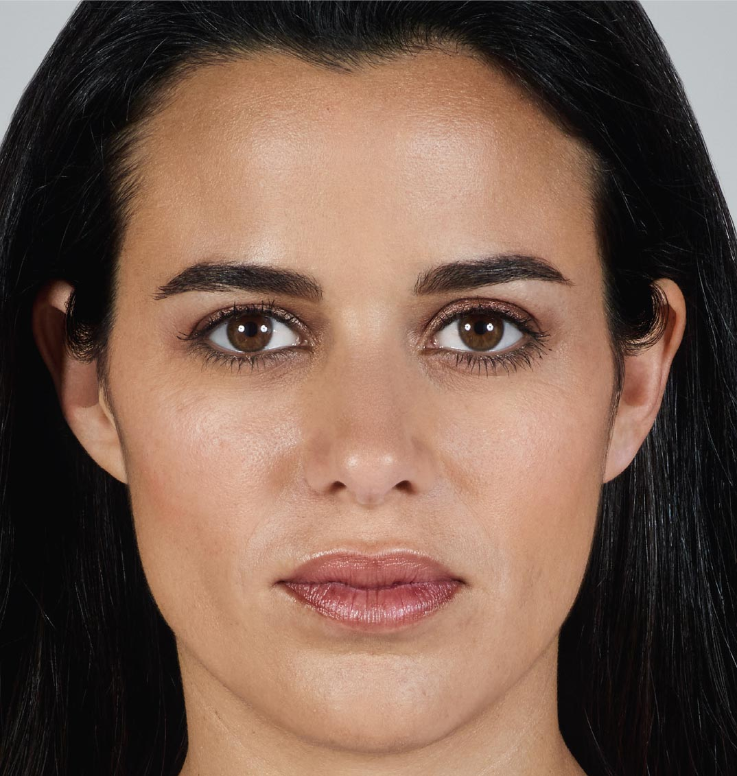 Juvederm Vollure XC 2 After