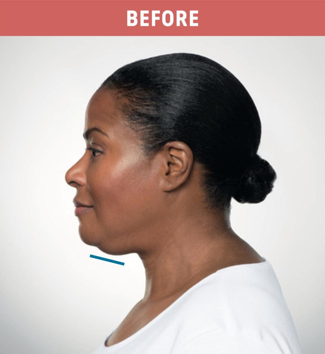 Kybella Before 2