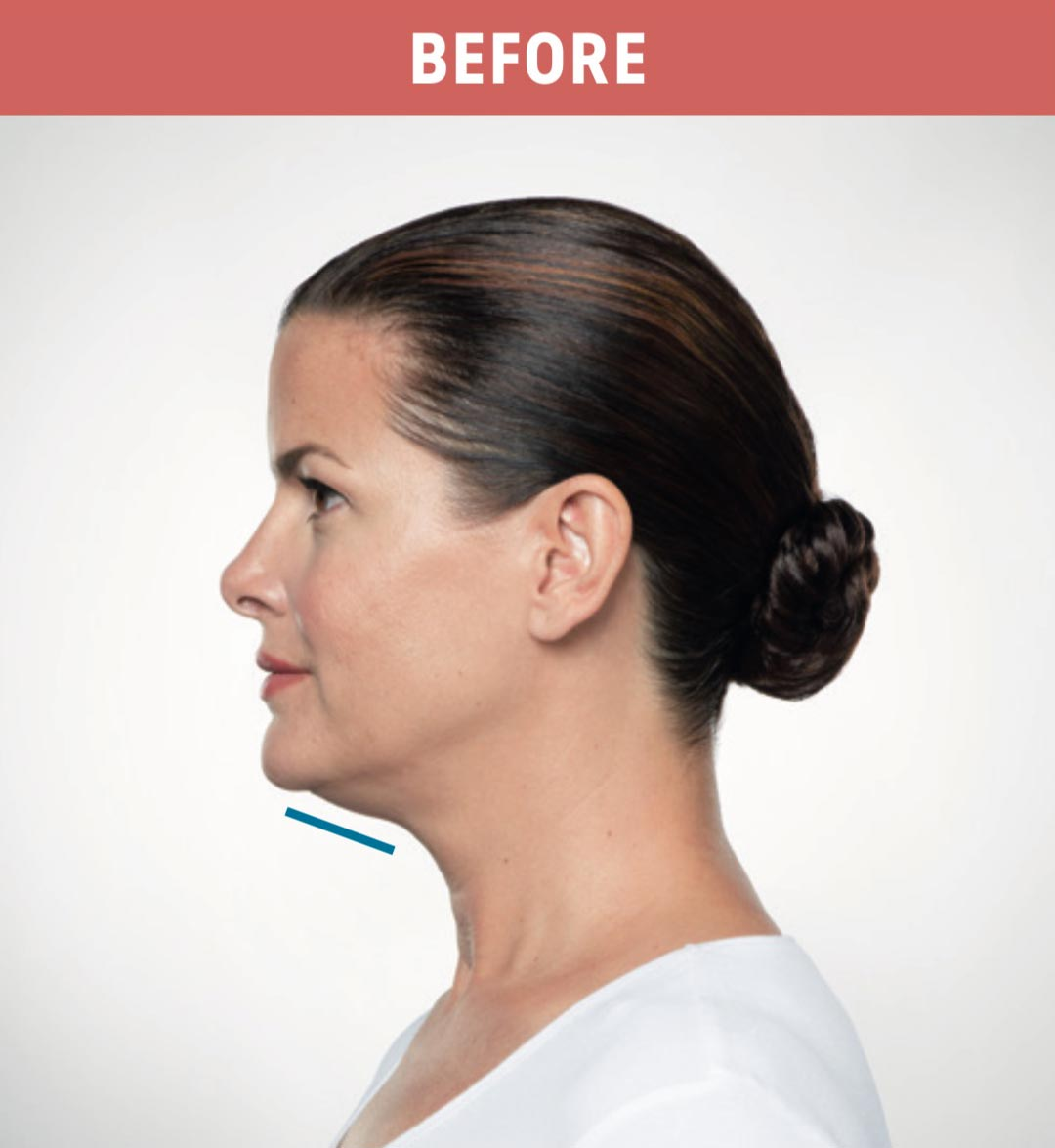 Kybella Before 3