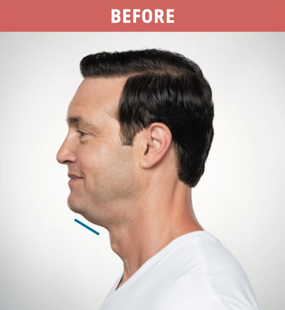 Kybella Before 4
