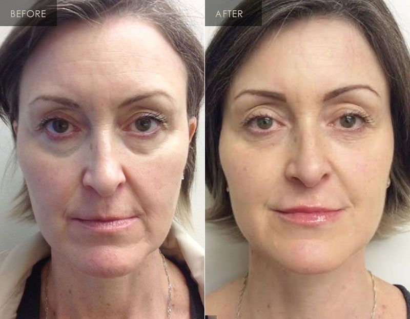 New Radiance Eye Rejuvenation Before and After 4