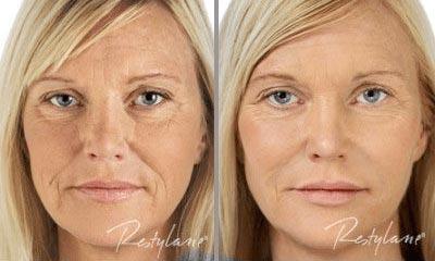 New Radiance Eye Rejuvenation Before & After 2
