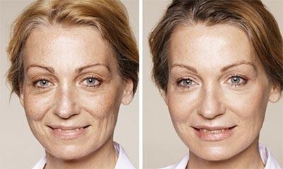 New Radiance Eye Rejuvenation Before & After Photo 1