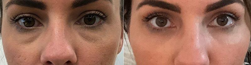 New Radiance Eye Rejuvenation Before & After Photo
