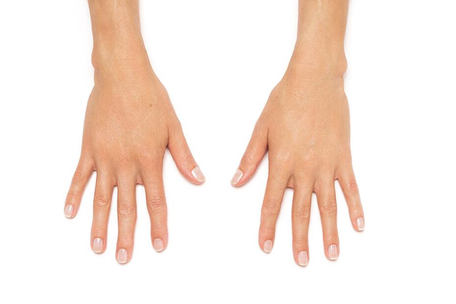 Radiesse Hands After