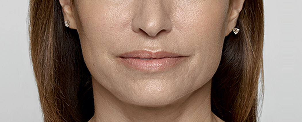 Restylane After Photo