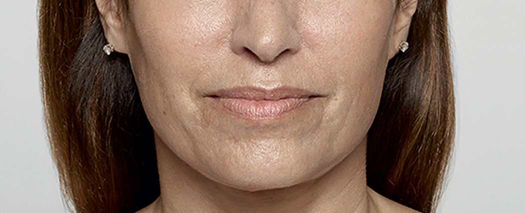 Restylane Before Photo