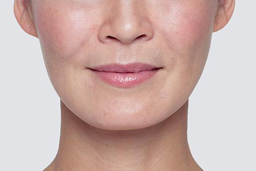 Restylane Lyft Face After