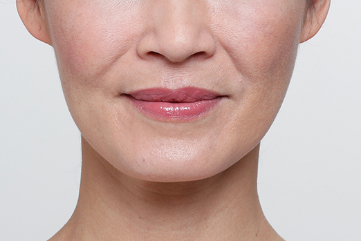 Restylane Lyft Face Before
