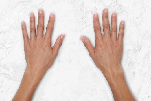 ReRestylane Lyft Hands After